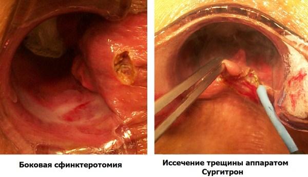 Удаление геморроидального узла при беременности