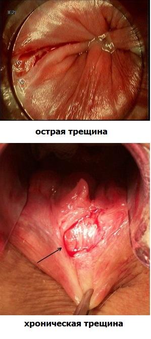 Анальные разрывы во время секса фото 105-453