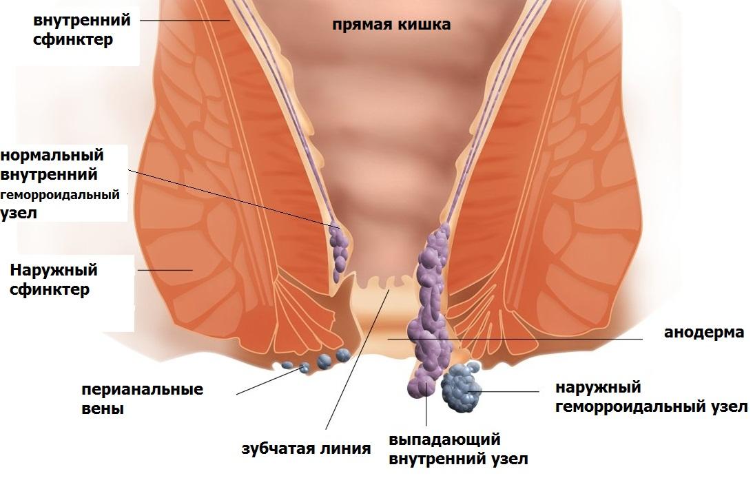 Зуд в заднем проходе из-за антибиотиков