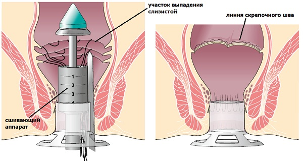 chlen-vlagalishe-rentgen